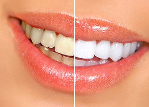 Teeth Whitening – White Plains Family Dental