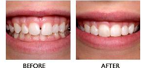 Porcelain Veneers – White Plains Family Dental