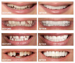 Snap On Smile 174 Westchester Gentle Dentistry