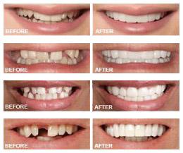 Snap-on Smile – White Plains Family Dental