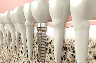 Cutaway of a dental implant.