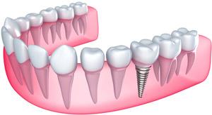 Bridges – White Plains Family Dental