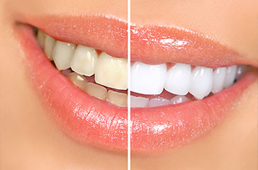 Example of before and after teeth whitening