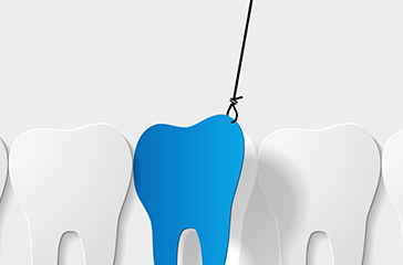 Tooth extraction illustration